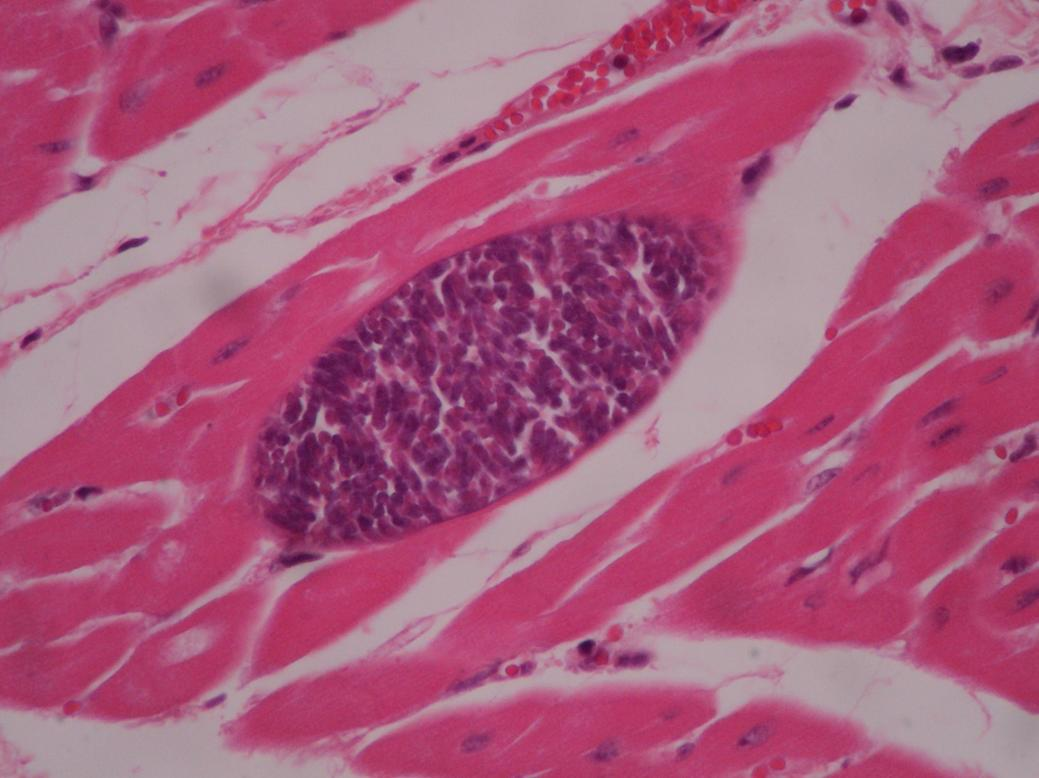 Photo of سارکوسیستیس ، انگل عضلات