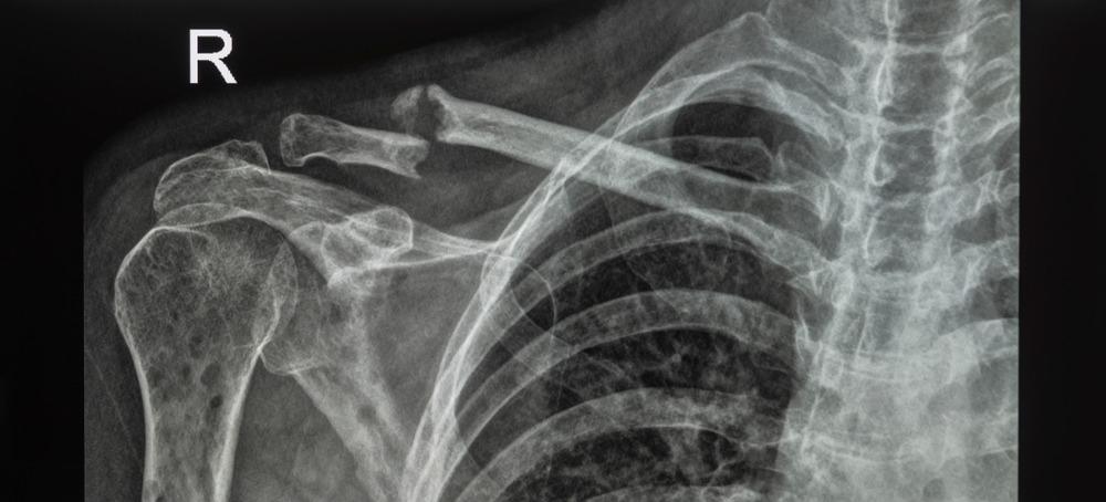 Photo of علائم بیماری مولتیپل میلوما