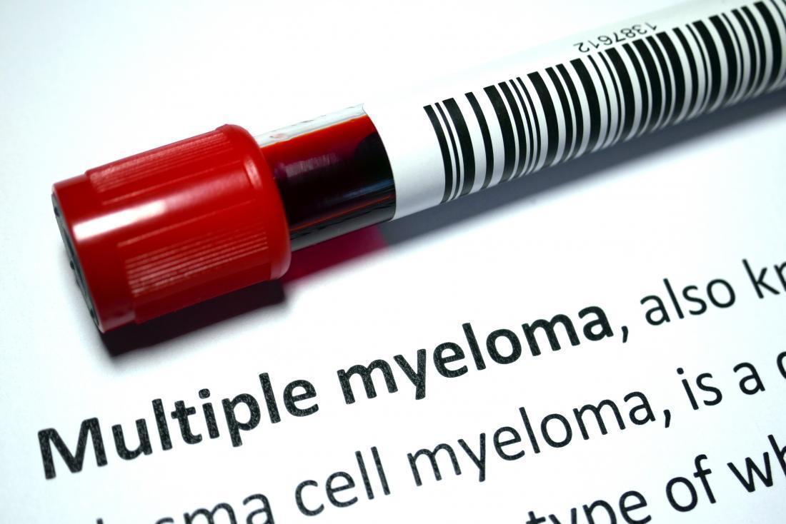 Photo of تشخیص مولتیپل میلوما چگونه است؟