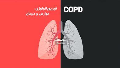 Photo of COPD یا بیماری های انسدادی ریوی: مکانیسم ایجاد، عوارض و درمان